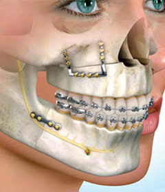 Orthognathic Surgery - Carmel Valley Center For Oral and ...